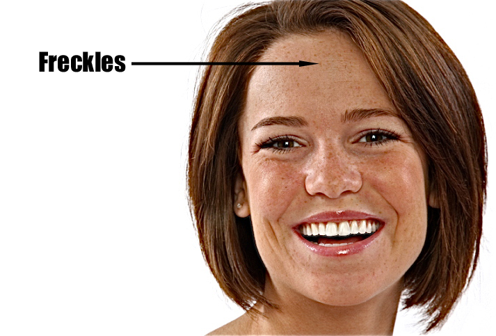 Woman Freckles